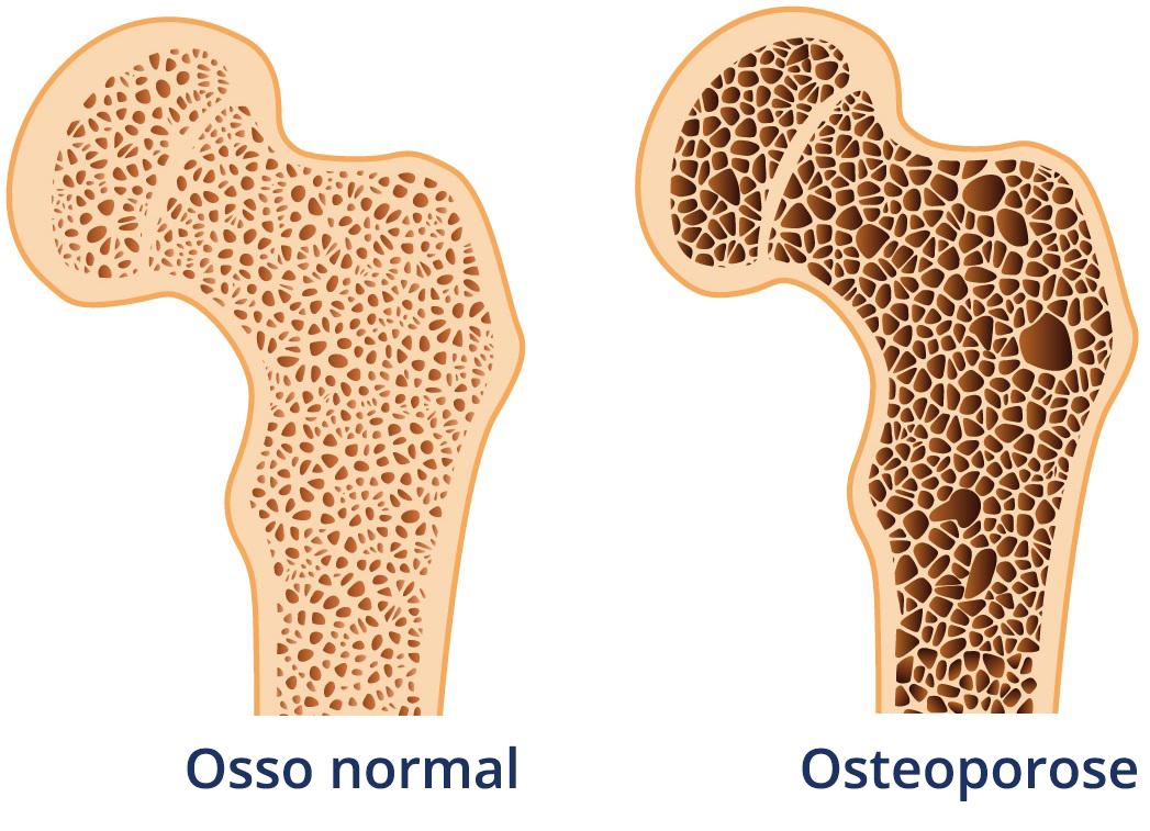 Remédios para osteoporose e os riscos para saúde bucal - Notícias & Negócios